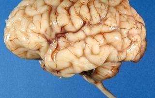 cloveski mozgani