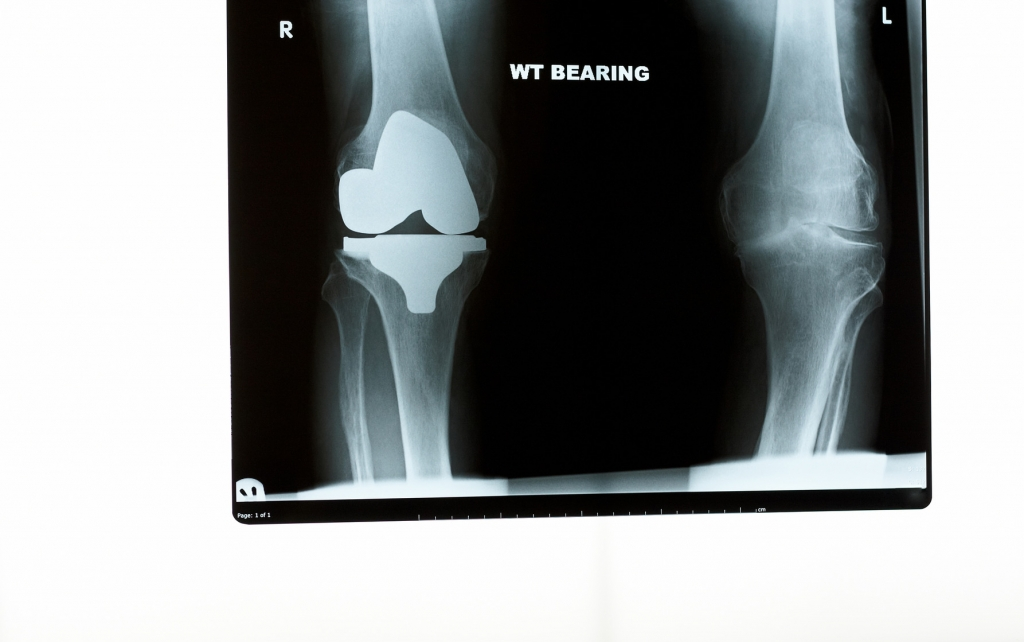 An xray of the knees