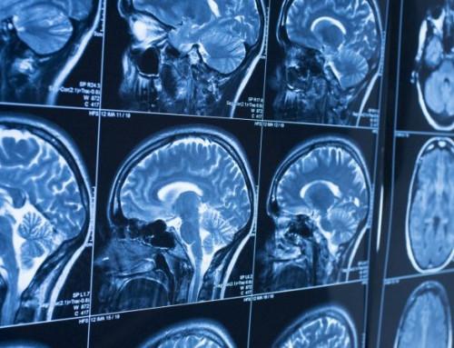 Možganski edem, možganska kap in možganski tumor