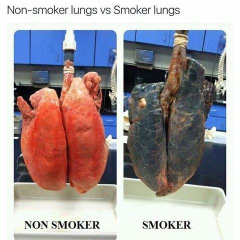 kadilska pljuca