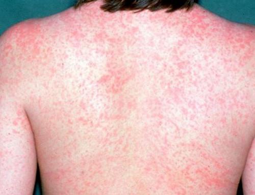 Skorajda vse o ošpicah, preventivi in pomenu cepljenja proti ošpicam