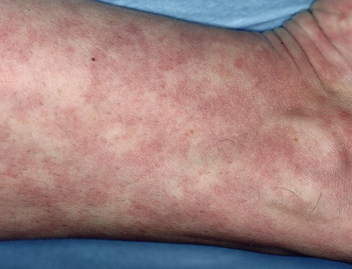 Sistemski eritematozni lupus