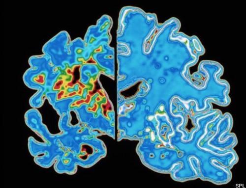 Pet načinov za upočasnitev napredovanja Alzheimerjeve bolezni